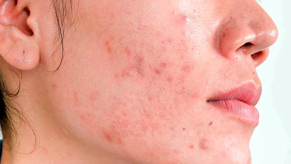 Radiofrequência fracionada microagulhada combinada com CO2 como intervenção precoce para acne inflamatória e cicatrizes em tratamento concomitante com isotretinoína