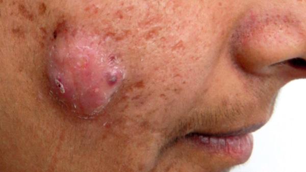 Escleroterapia intralesional para o tratamento de acne cística: série de casos