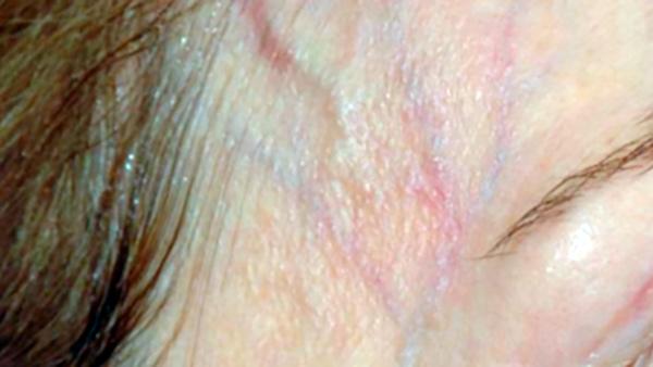 Tratamento das veias reticulares perioculares e temporais com laser Nd: YAG 1064 nm