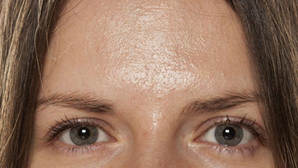 Estudo duplo-cego randomizado que avalia a segurança e a eficácia de injeções de toxina botulínica A para oleosidade da testa