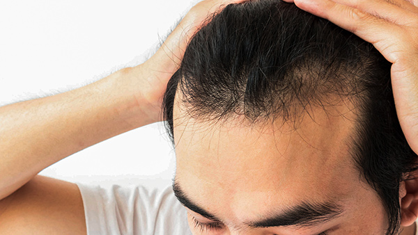 Injeção de gordura autóloga estimulando o crescimento de cabelo em  alopecia androgenética resistente