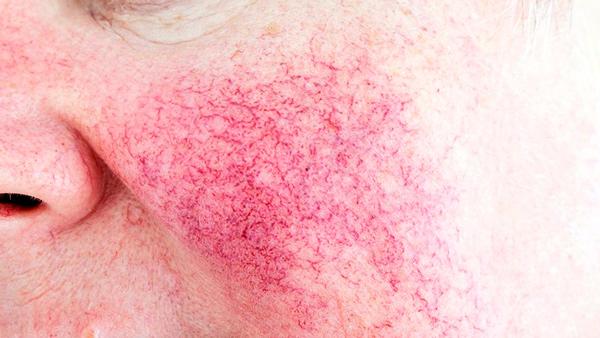 Microinjeções de ácido tranexâmico: nova opção de tratamento para rosácea eritematotelangectásica