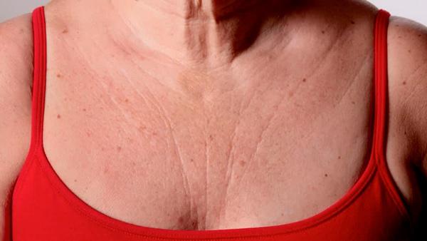 Hidroxiapatita de cálcio para rejuvenescimento de colo